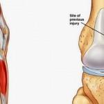 Phương pháp trị liệu đau khớp gối phổ biến nhất