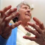 Tàn phế do biến chứng của bệnh viêm khớp